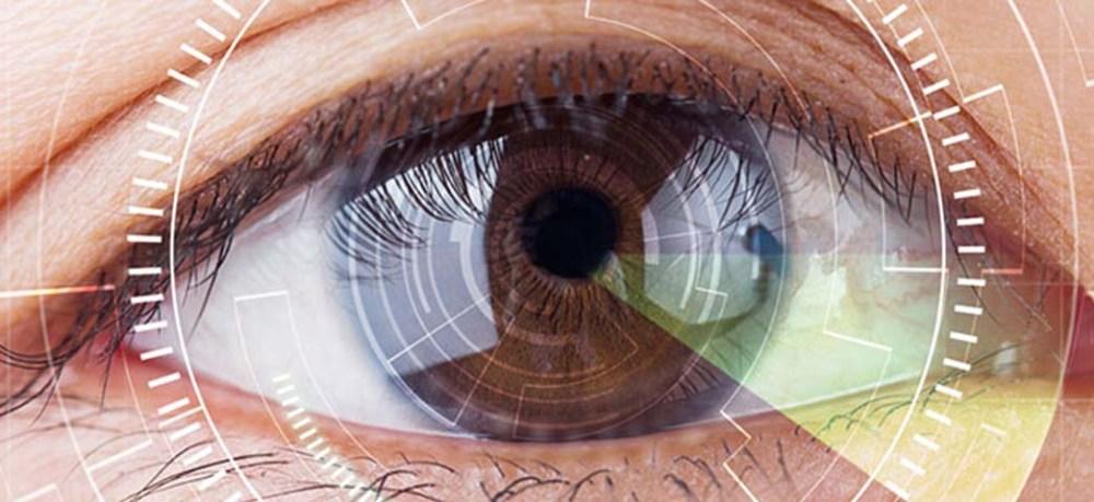 iridologia-head